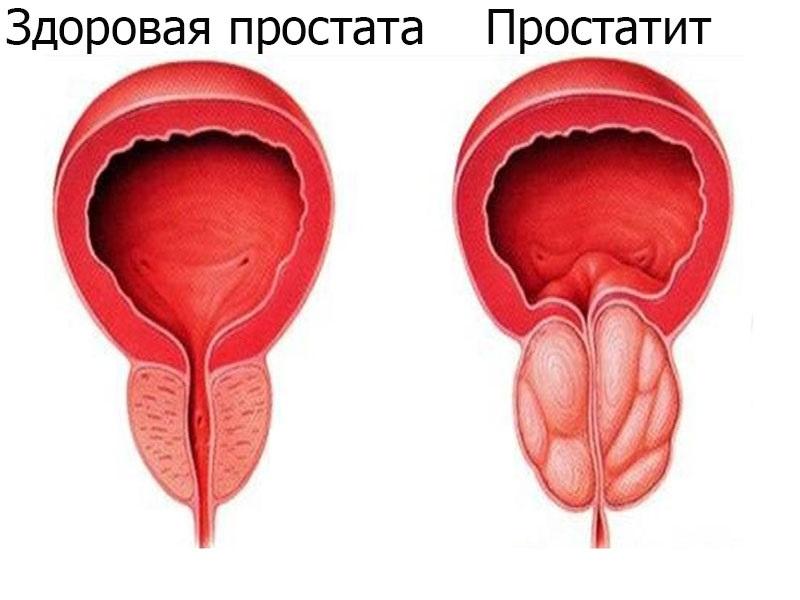 Симптоми загострення хронічного простатиту і його лікування