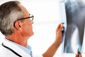 Остеохондроз попереково-крижового відділу хребта