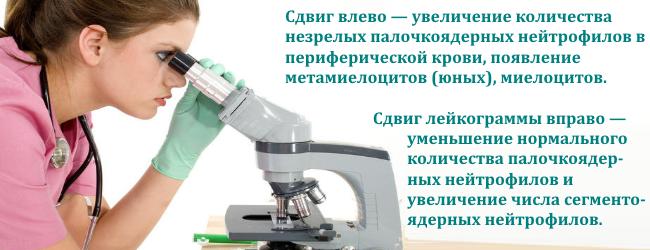 lejkocitarnaya-formula-krovi