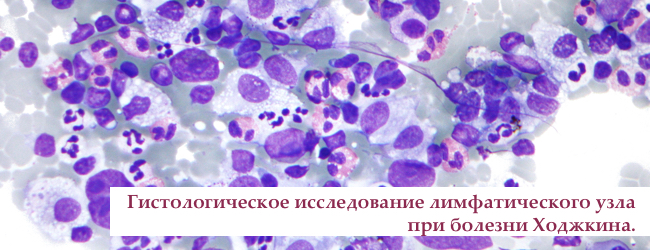 limfoma-xodzhkina