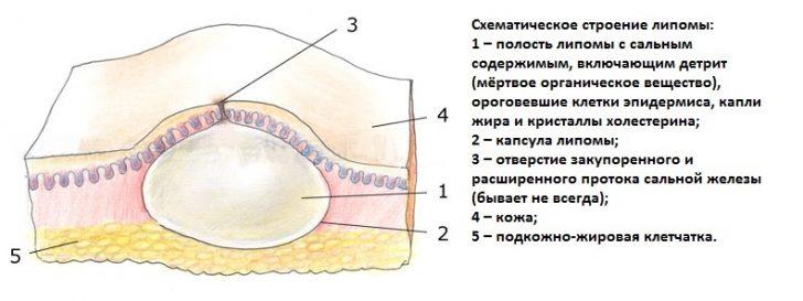 lipoma1