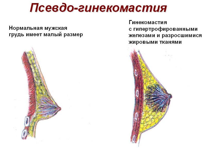 Хибна гінекомастія: симптоми і лікування
