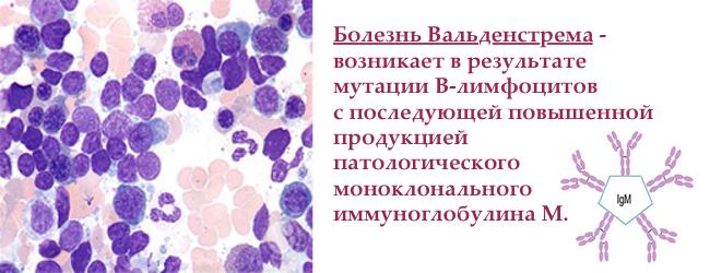 makroglobulinemiya-valdenstrema