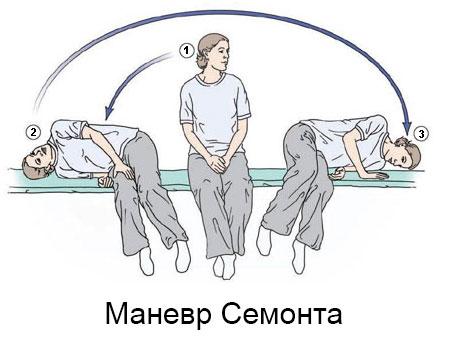 Маневр Семонта при ДППГ