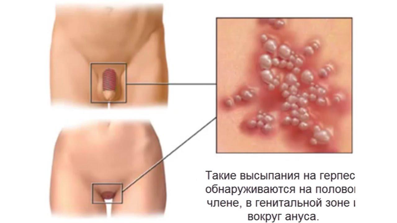 Причини почервоніння на шкірі статевого члена