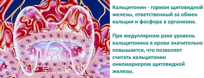 medullyarnaya-karcinoma