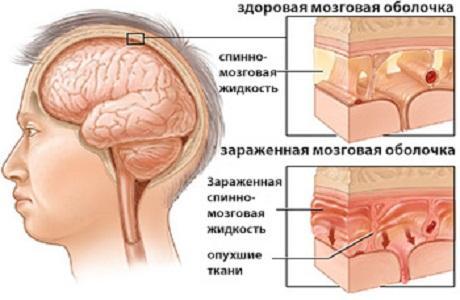 meningit-7