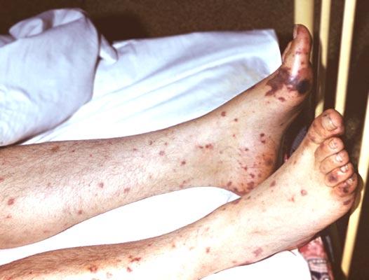 Геморрагическая сыпь у больного менингококкемией.