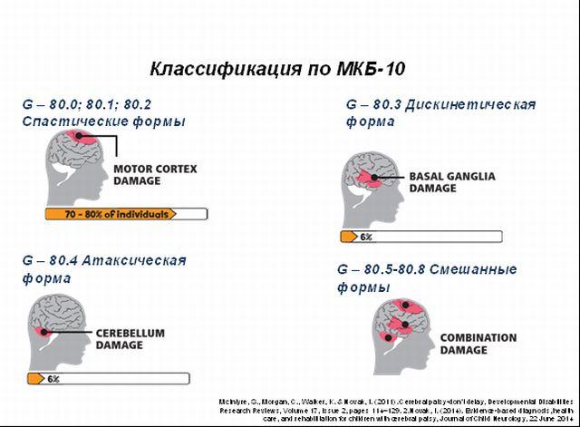 Классификация ДЦП по МКБ 10