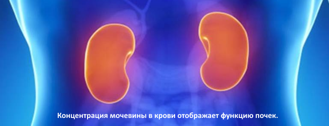 mochevina-v-krovi 1