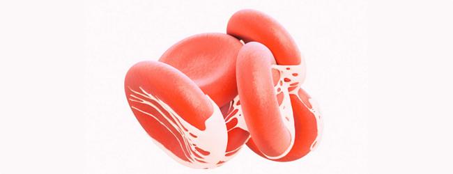 mutaciya-faktora-v-proakcelerina