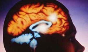 нарушение в мозгу