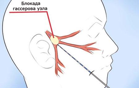 Лечение «воспаления» тройничного нерва, блокада гассерова узла