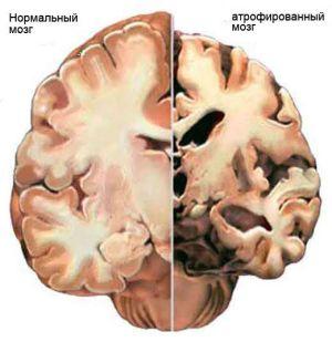 атрофированный мозг