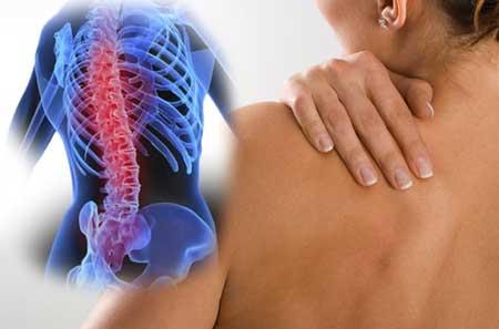 обострение остеохондроза грудного отдела