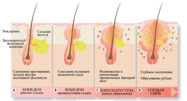 Как избавиться от сальных пробок на лице