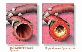 лечение обструктивного бронхита