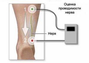 оценка проводимости нерва