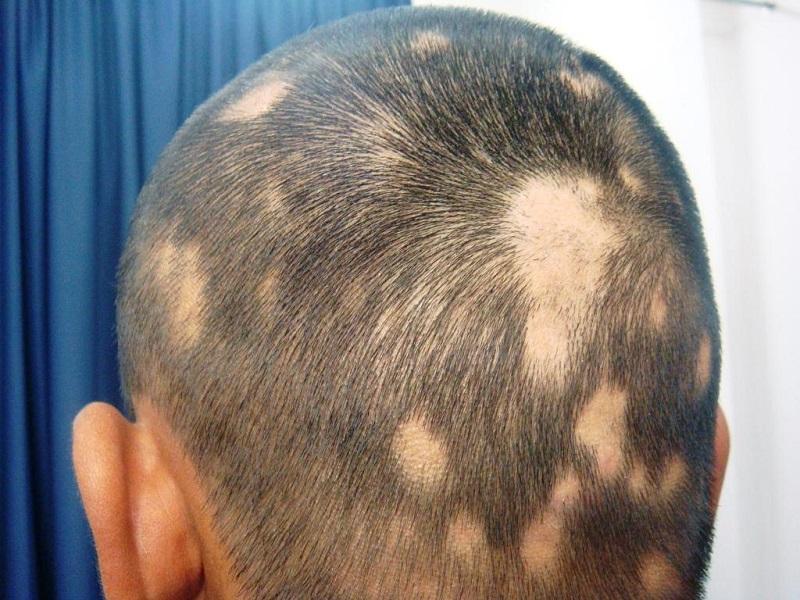 Вогнищева алопеція у чоловіків: лікування та класифікація