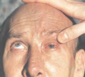 симптомы офтальмоплегии