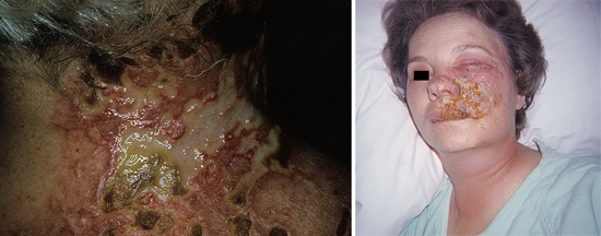 вторичная инфекция при опоясывающем лишае