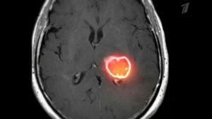 опухоль на МРТ