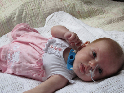 трахеостомия у ребенка