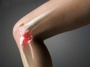 Осложнения на суставы