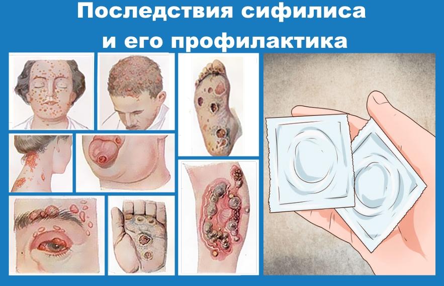 Ознаки венерологічних захворювань у чоловіків