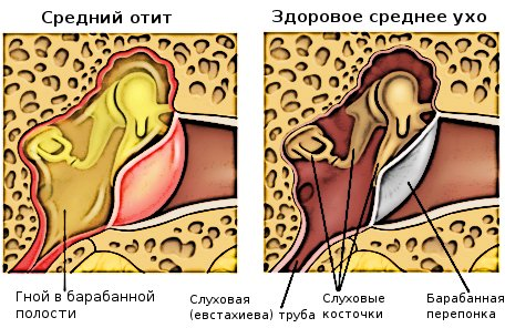 Разница между больным ухом и здоровым