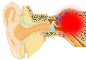 Отосклероз - признаки и лечение