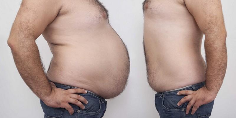 Ожиріння 1 ступеня у чоловіків: все методи лікування