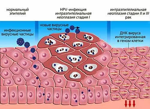 ВПЛ у чоловіків: симптоми, лікування і запобіжні заходи