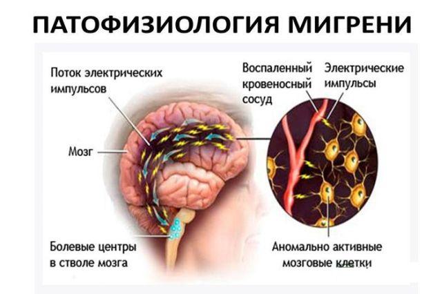 Патофизиология мигрени