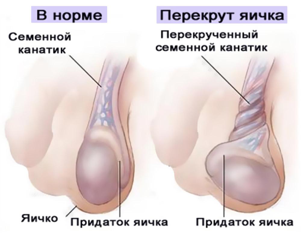 Болить ліве яєчко: причини