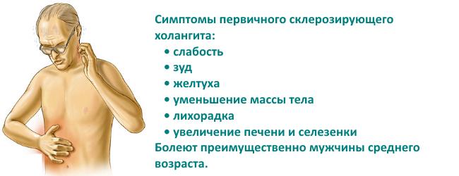 pervichnyj-skleroziruyushhij-xolangit