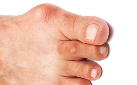 подагра на большом пальце ноги фото