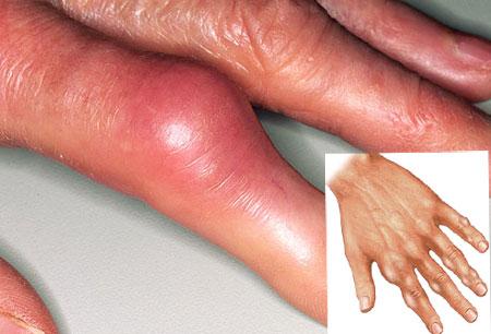 подагра-пальцев-рук-фото