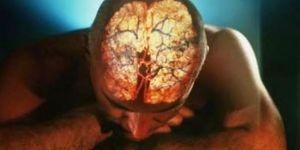 деменция структур мозга