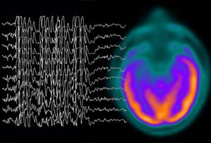 Сбой в работе мозга при абсансе