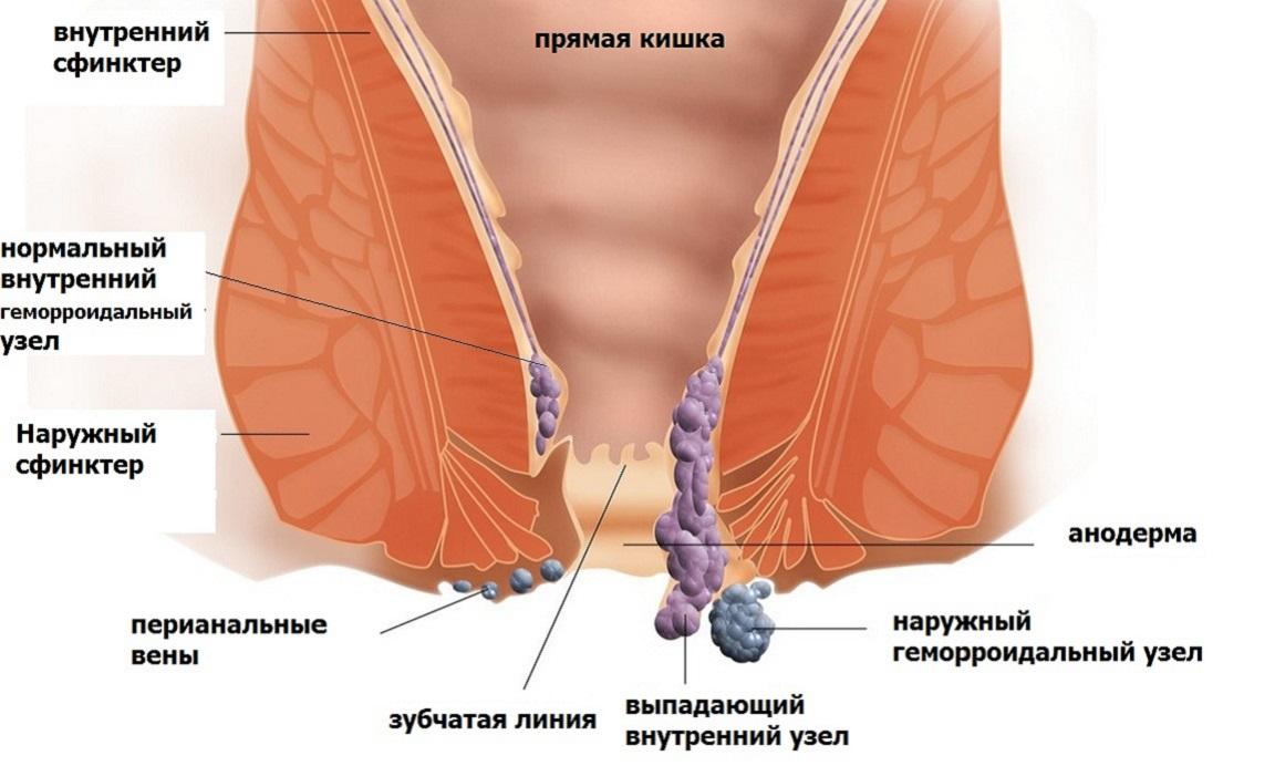 Причини і лікування геморою у чоловіків