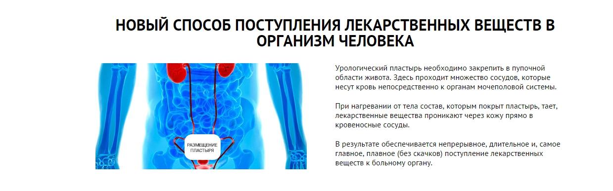 Zb prostatic navel plaster: про що свідчать відгуки лікарів