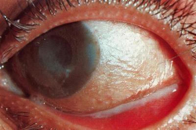 последствия дифтерийного конъюнктивита