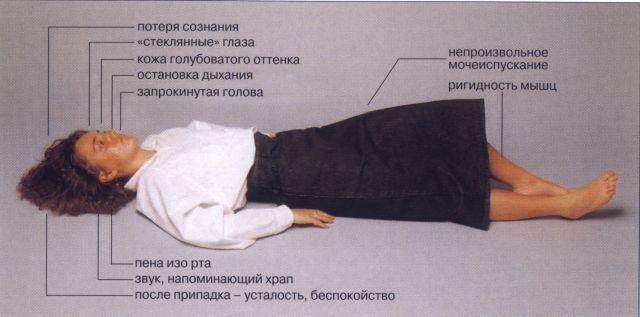 признаки приступа эпилепсии