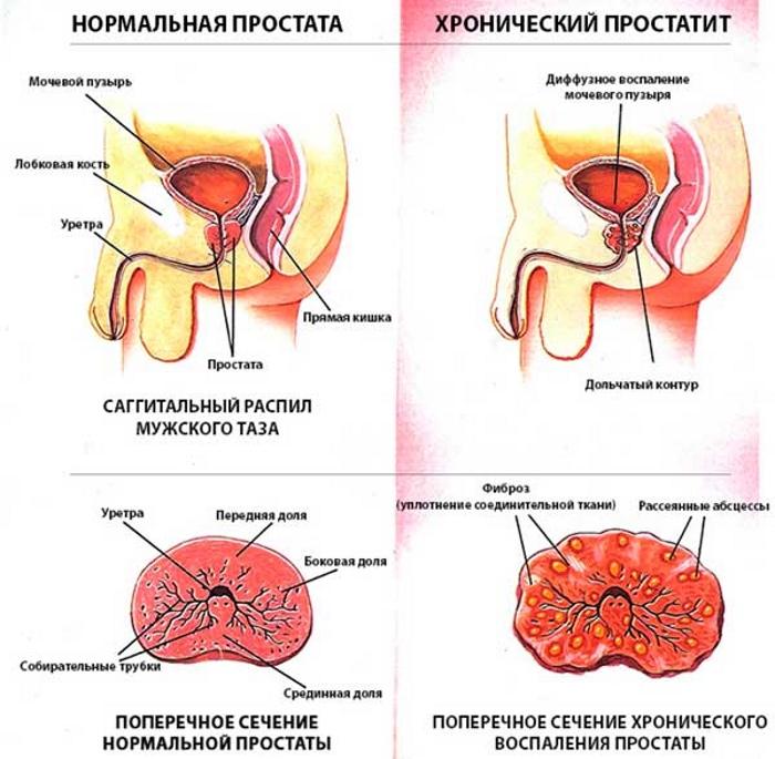 Що таке хронічний простатит у чоловіків: визначення, симптоми і лікування