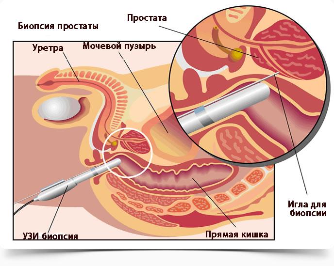 Підготовка до біопсії простати: що потрібно знати?