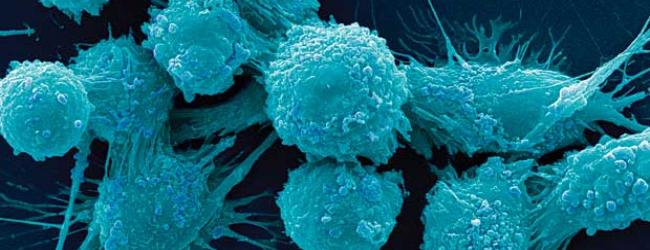 prostatospecificheskij-antigen