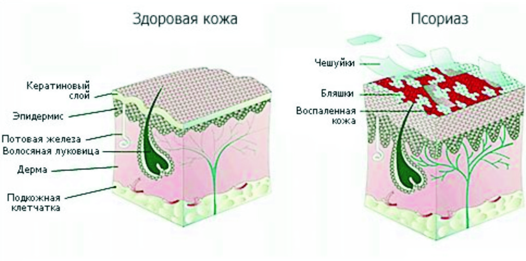 Червоні плями на голівці члена і крайньої плоті