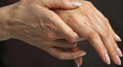 Первые симптомы ревматоидного артрита пальцев рук