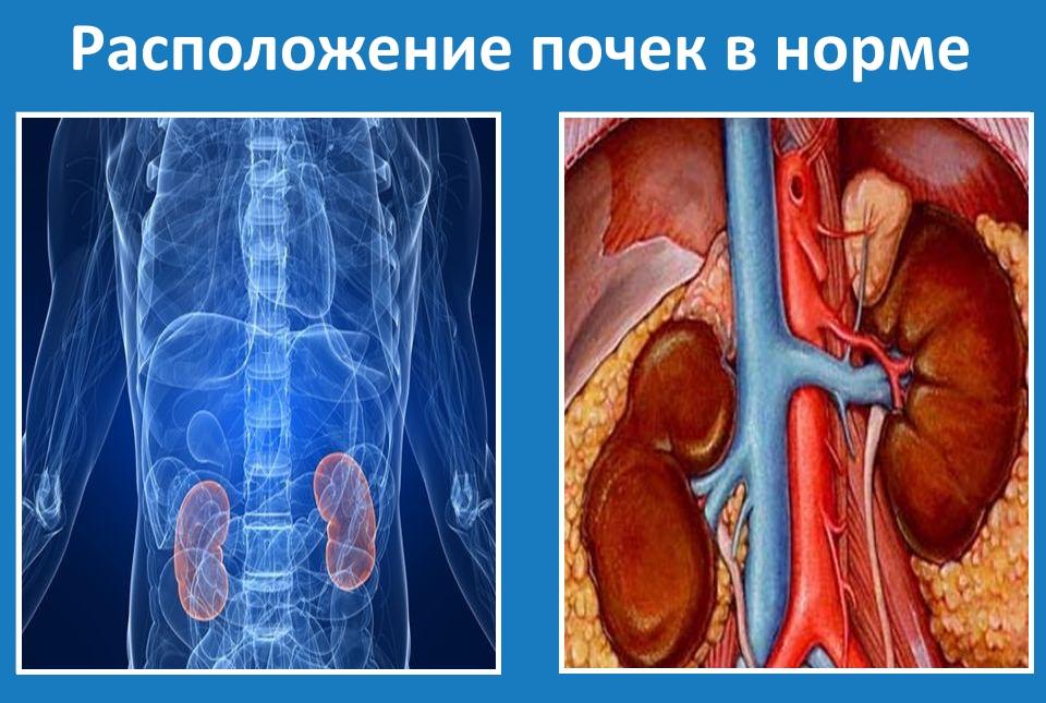 Опущення нирки: можливі причини і наслідки